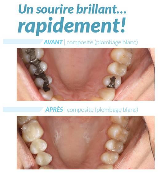 Restauration dentaire